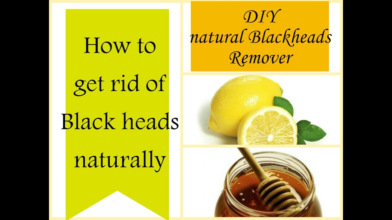 How to get rid of blackheads naturally at home