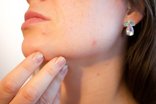 Best tips to clear acne naturally forever