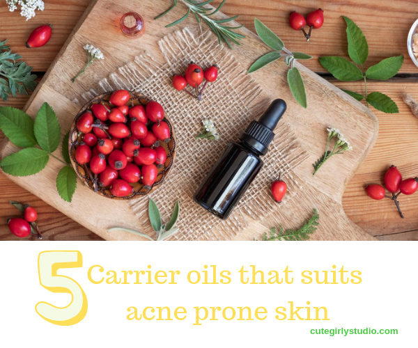 Carrier oils that suits acne prone skin