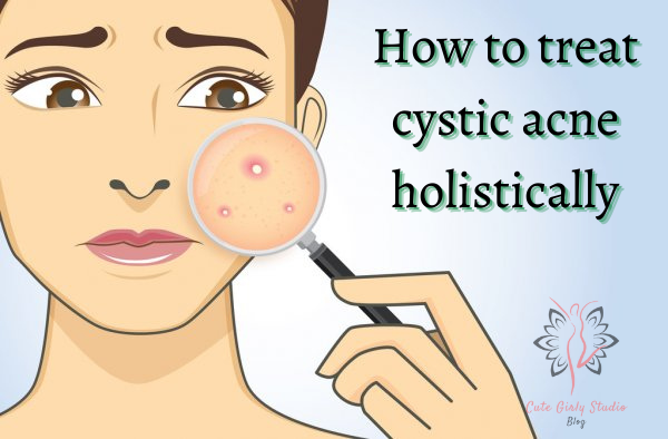 How to treat cystic acne holistically